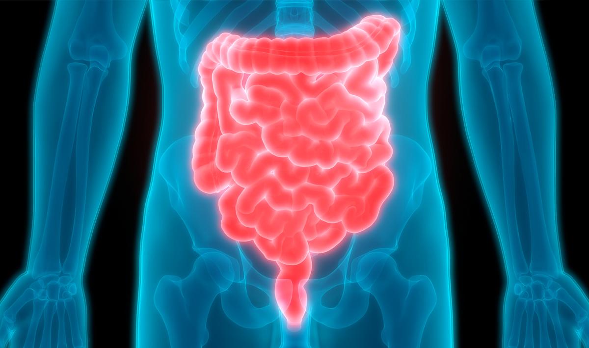 Reto en enfermedad inflamatoria intestinal